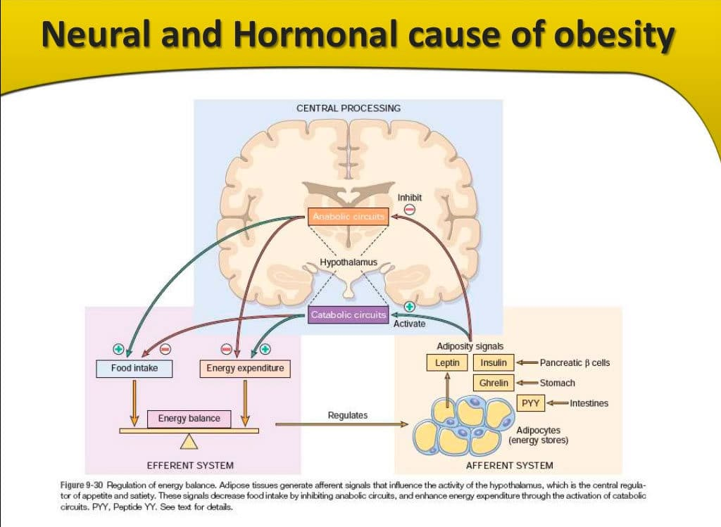 cause of obesity